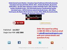 Spinal Fusion Market Analysis, Growth and 2021 Forecast